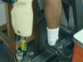 ProtesisSentado