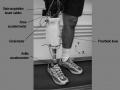 instrumentacion_protesis2